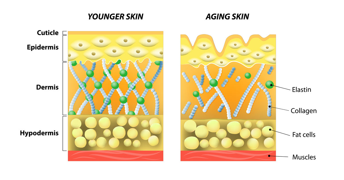 chicago-ablative-laser-skin-resurfacing